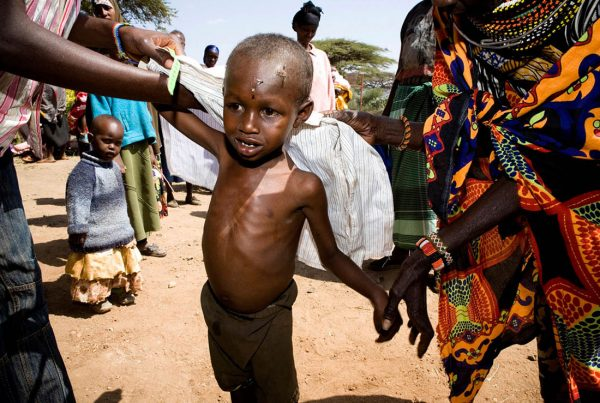 A colour image of a young malnourished boy East Africa Appeal supported by The Ellis Campbell Foundation